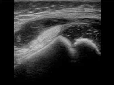 Synovial thickening and Effusion